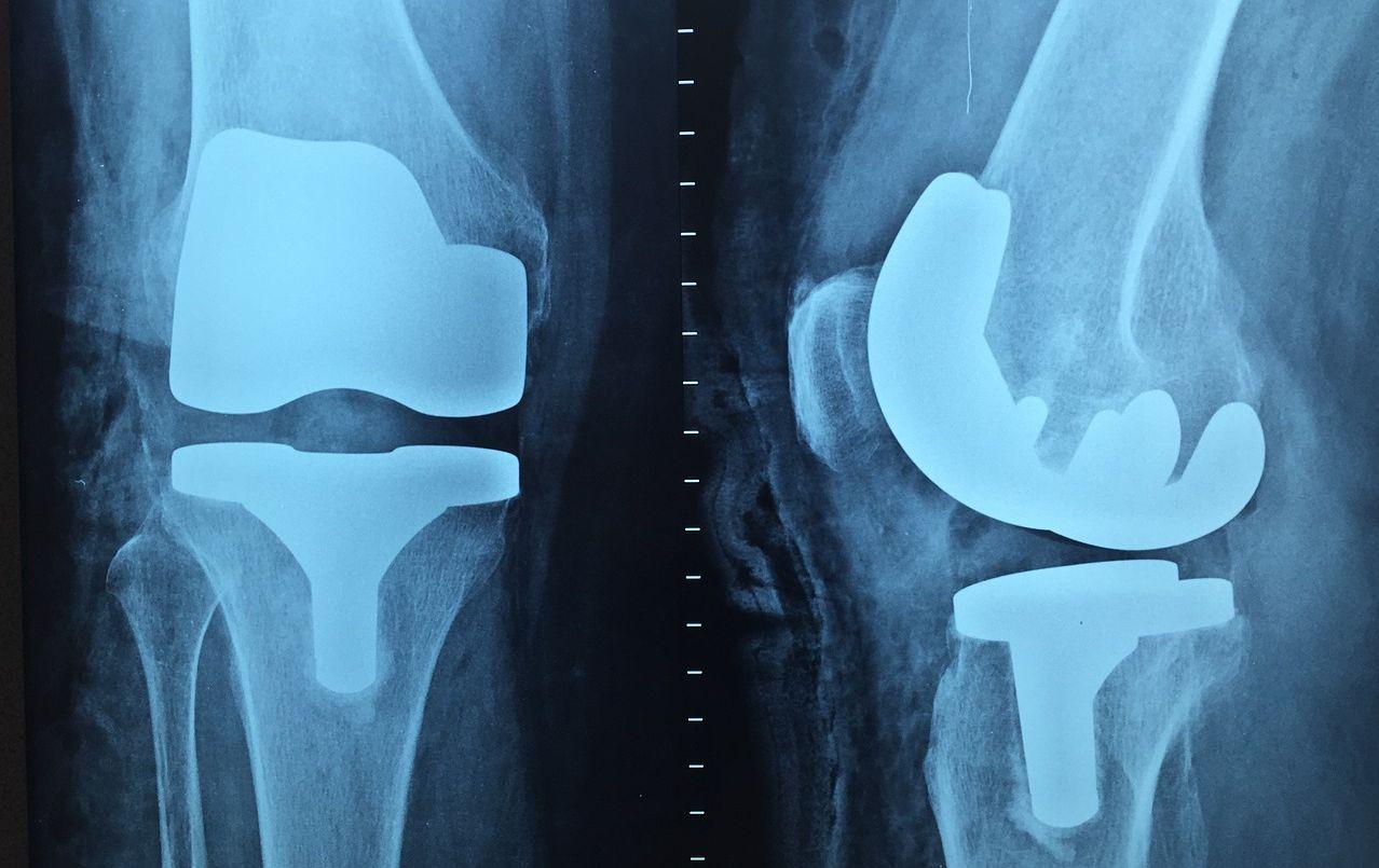 膝の痛み4種類とストレッチ